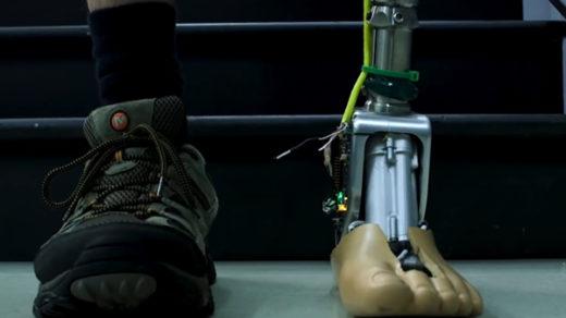 inteligentna proteza